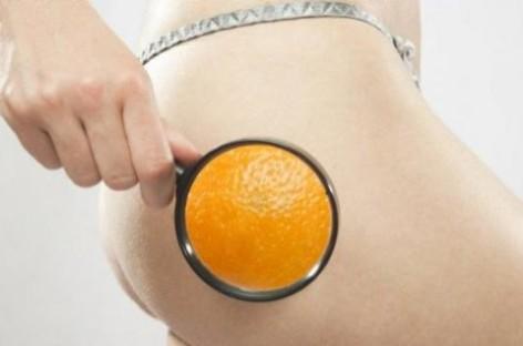 Tratamentos Naturais para a Celulite