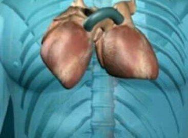 Transplante de coração: Exame simples indica risco de rejeição e pode substituir a temível biópsia