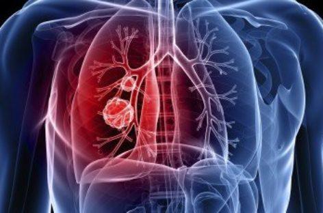 Câncer de Pulmão – O que é, sintomas e tratamento