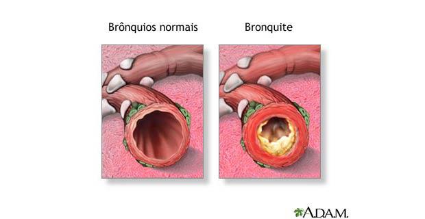 sintomas de bronquite