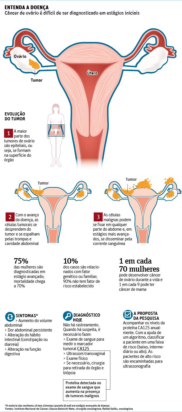 Câncer de ovário: primeiro passo para o diagnóstico é lembrar que a doença existe