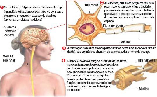 O que é esclerose múltipla