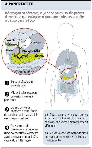 Dieta normal para tratar pancreatite