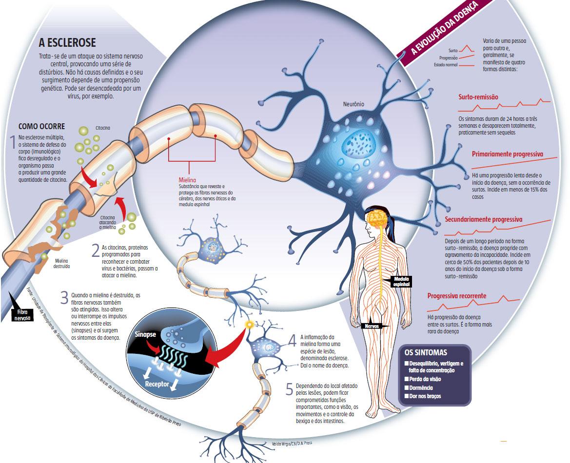 Esclerose múltipla: novos medicamentos garantem qualidade de vida a pacientes
