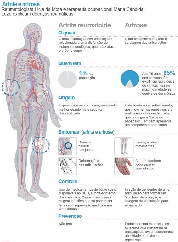 Especial Reumatismo: doença de qualquer idade