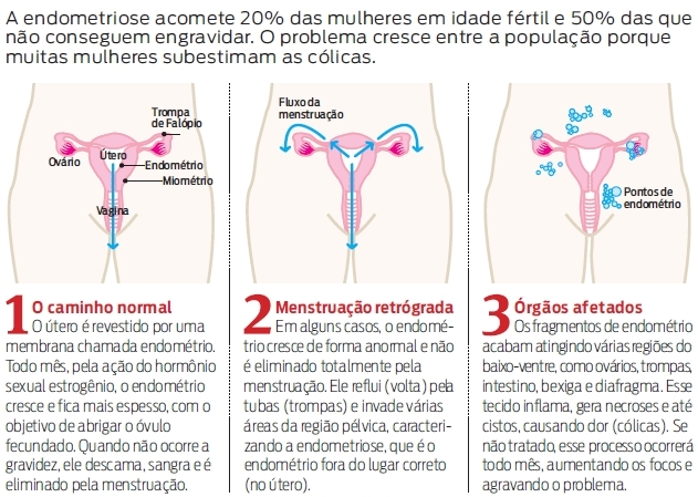 endometriose tem cura