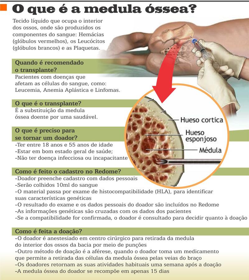 Medula óssea. O que você sabe sobre ela?