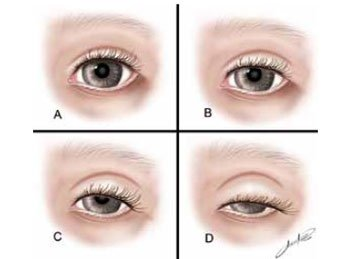 Olhar assimétrico: queda da pálpebra e projeção do globo ocular trazem desconfortos e complicações funcionais.