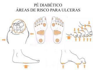 Pé diabetico: Quais os cuidados para evitar?