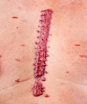 Queloide: pesquisa desenvolve nova terapia que evita falha na cicatrização