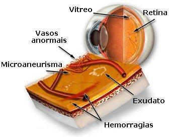 Retinopatia diabética: prevenção com visita regular ao oftalmologista