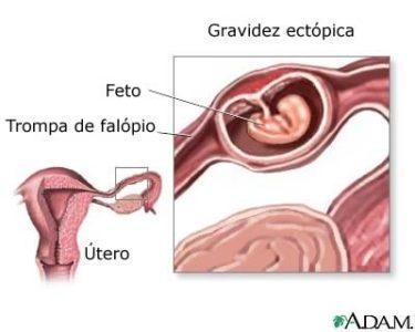 os sintomas de gravidez ectópica