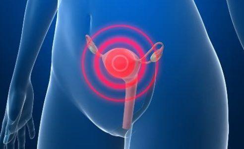 Vacina para Câncer de colo de útero