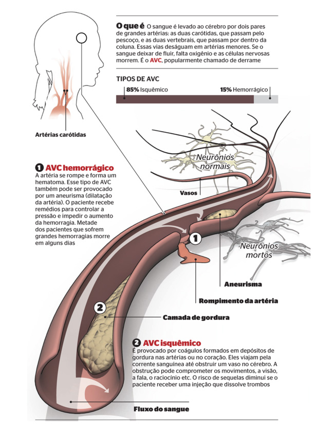 AVC – acidente vascular cerebral: cada vez mais cedo… Como evitar?