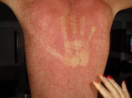 Dengue: como evitar?