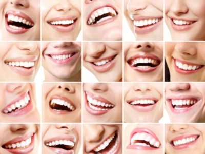 fotos de sorrisos perfeitos