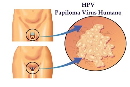 O que é HPV